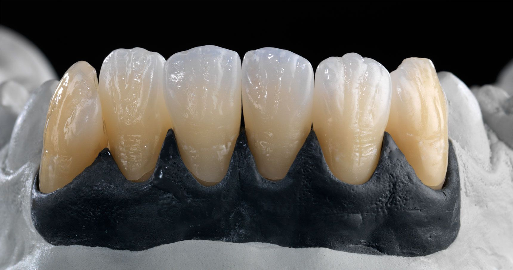 5 Aspects To Be Noted When Fabricating Restorations For Adolescents Dental Ceramics Dental Art Dental Restoration