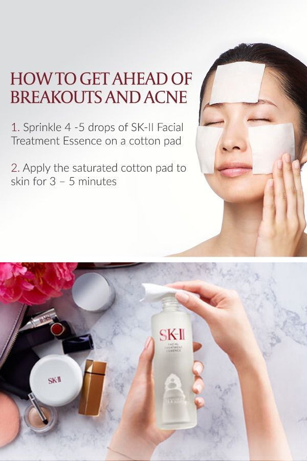 Rejuvenate yourself with sk ii and uncover beautiful skin today to rejuvenate yourself with sk ii and uncover beautiful skin today to get ahead of breakouts and acne use facial treatment essence to prevent skin dryness solutioingenieria Images