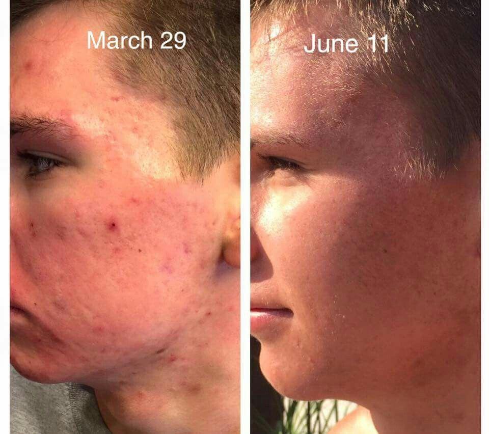Jeunesse Cellular rejuvenation serum reduces lifelong acne to nothing !! Click here --->  Banknote.jeunesseglobal.com