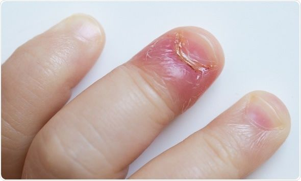 Types Of Nail Disease Infected Cuticle Finger Infection Skin