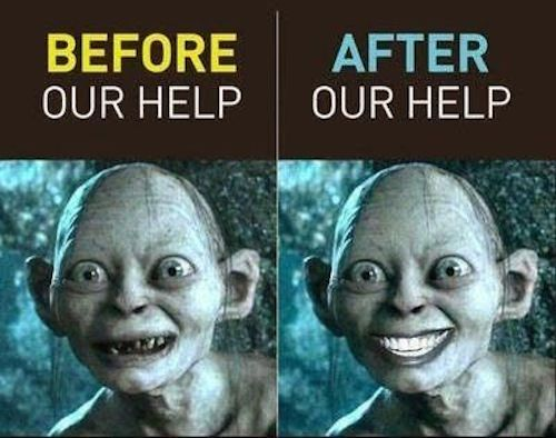 Golum's  teeth before and after