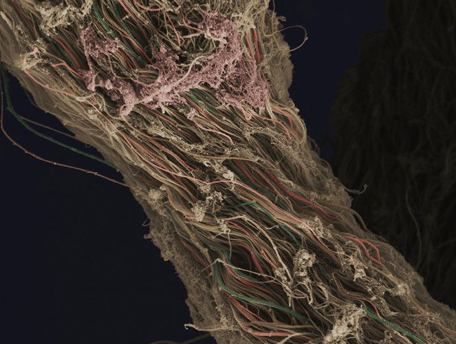A false-coloured scanning electron micrograph showing connective tissue removed from a human knee during arthroscopic surgery. Individual fibers of collagen can be distinguished and have been highlighted by the creator using a variety of colors. The horizontal field width of the image is 16 microns.