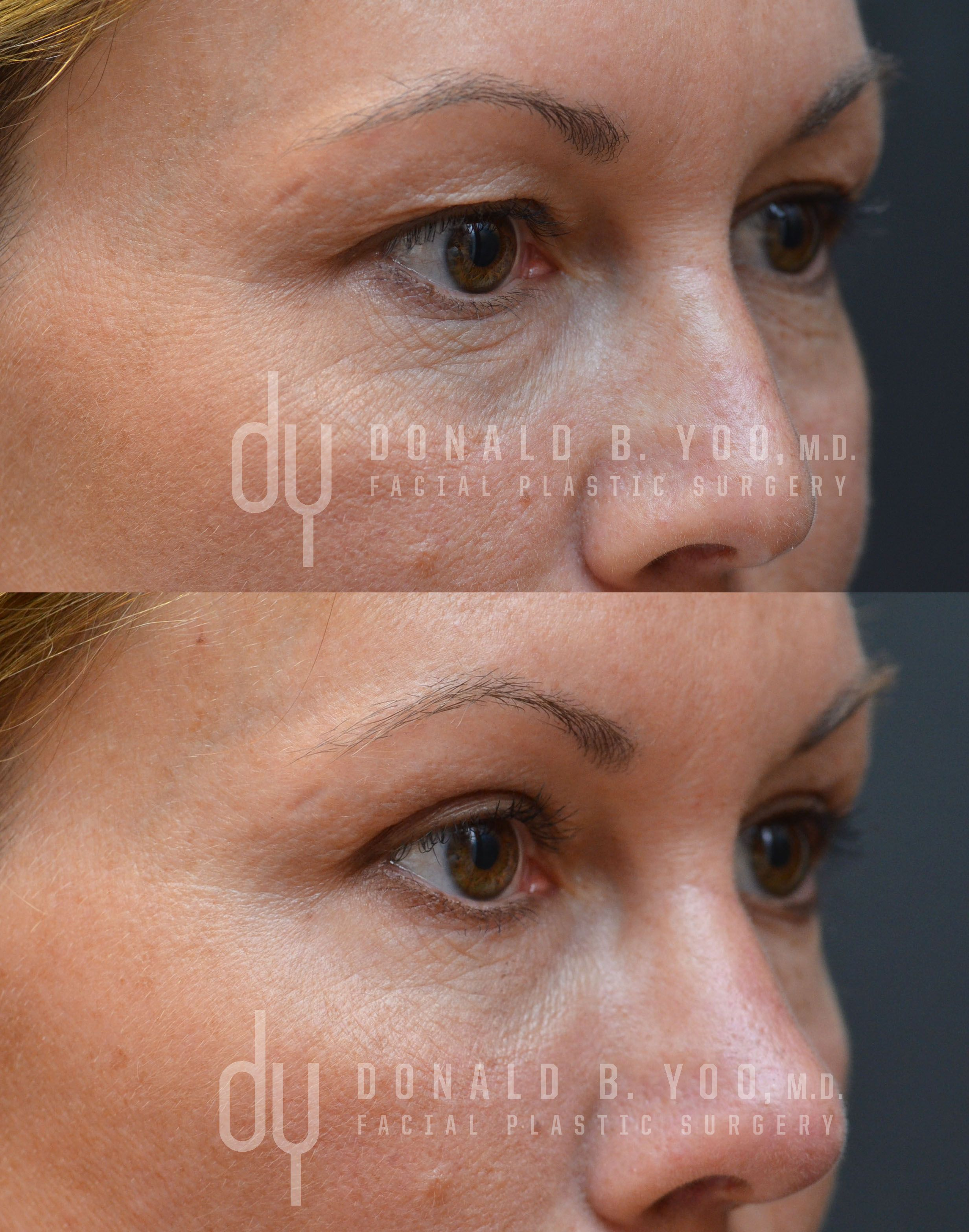 ... removed and the upper eyelids contoured to create greater symmetry and  a more refreshed appearance. #blepharoplasty #plasticsurgery #drdonyoo