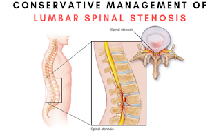 Best option for spinal stenosis