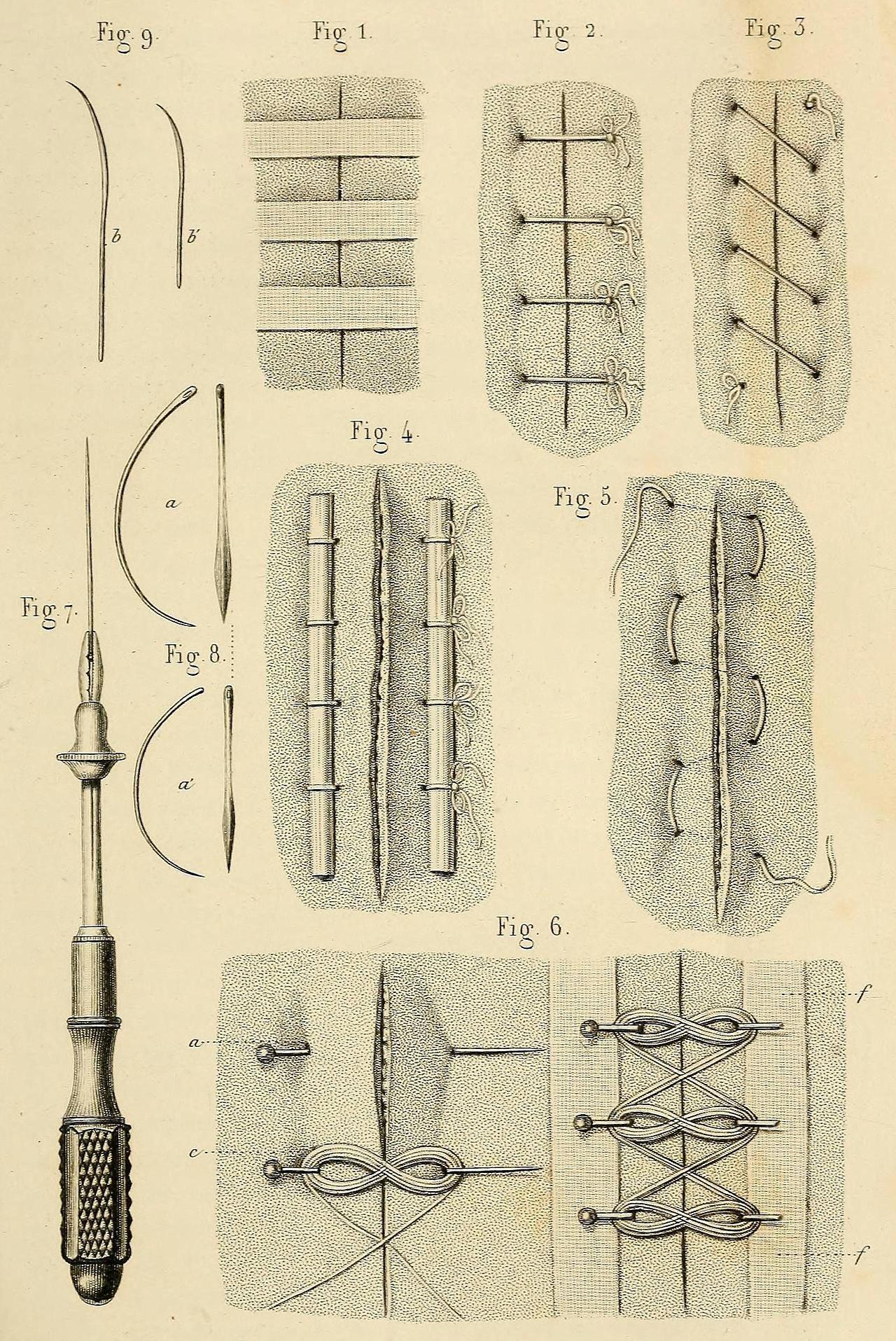 Wound Closure Techniques Ca 1855 Fig 1 Closure Of The