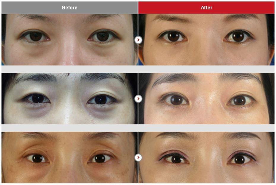 Pin On Eye Surgery