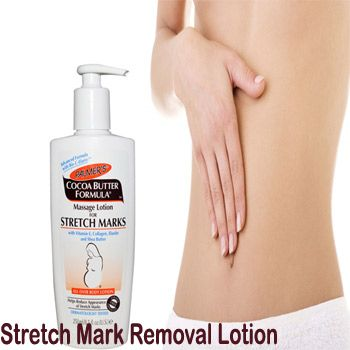Stretch Marks Removal After Delivery Available In Pakistan Cash On