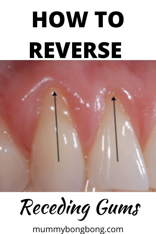 How to reverse receding gums in 2020 reverse receding