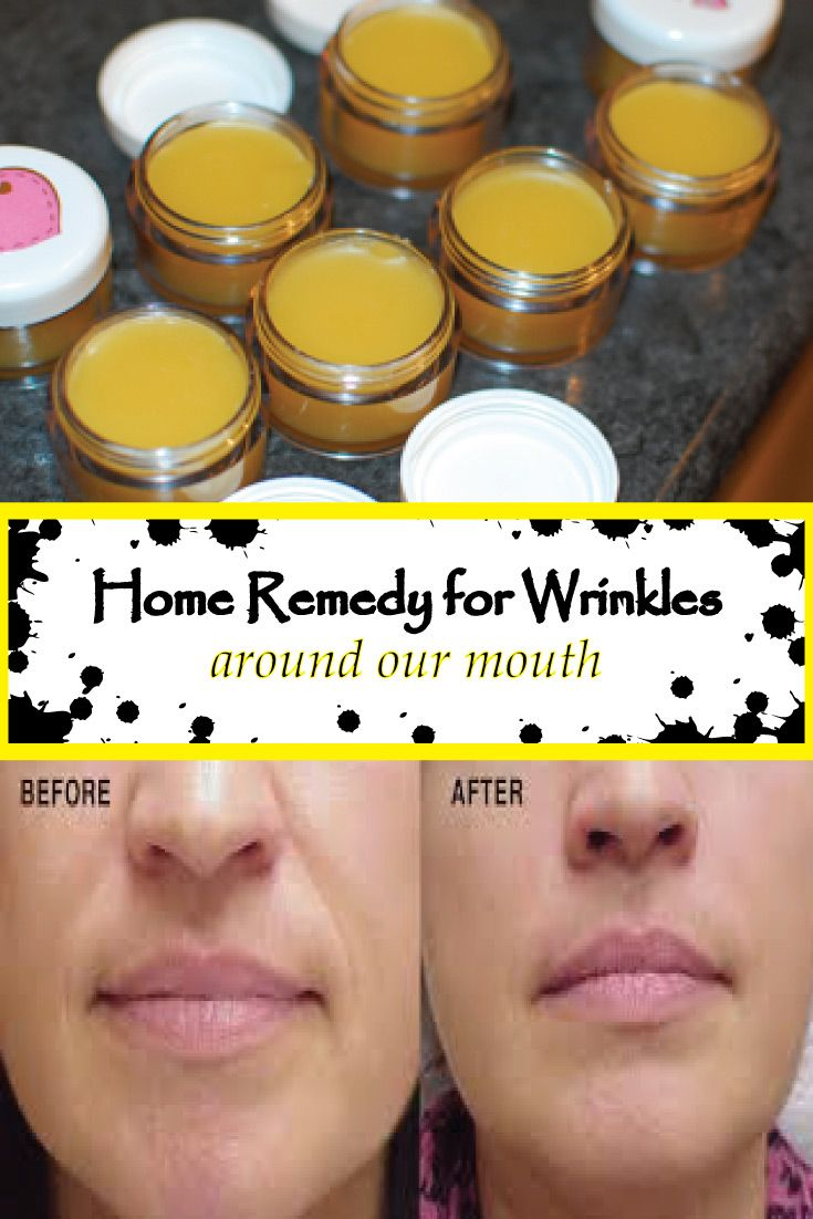home remedy for wrinkles around our mouth skincare pinterest