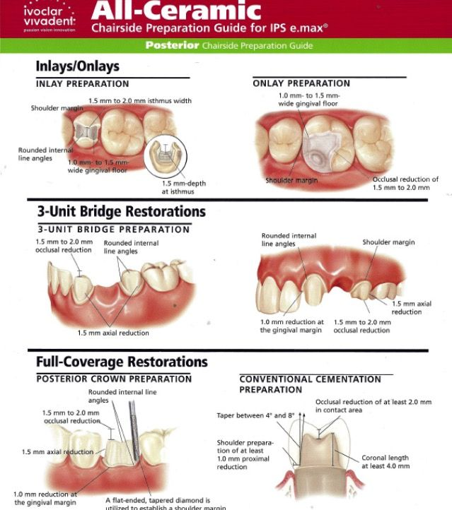Pin By Azize On Protez Dentistry Onlay Preparation