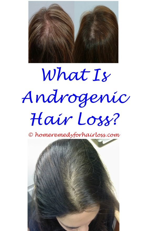 For Hair Loss | Hair loss, Coconut oil hair loss and Female hair loss