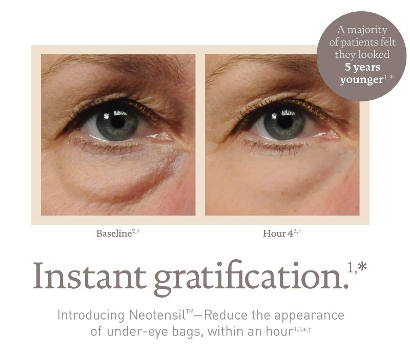 Introducing A Revolutionary Solution For Under Eye Bags Neotensil Under Eye Reshaping Procedure The First Do I Obagi Skin Care Under Eye Bags Facial Plastic