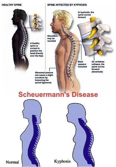Image result for scheuermann's disease causes symptoms & treatments