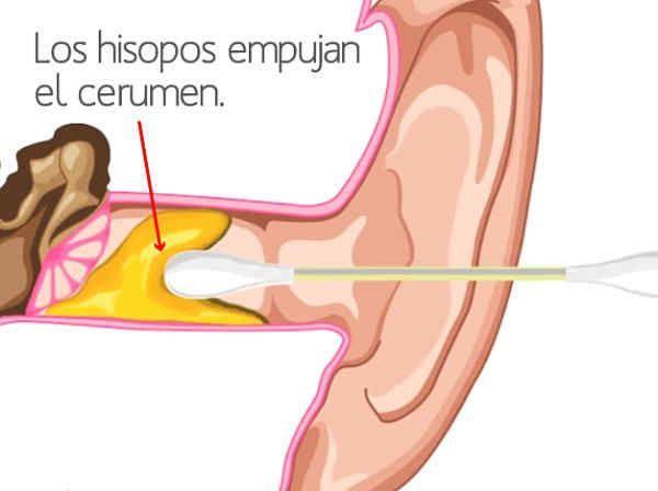 Los Hisopos Empujan El Cerumen Exercise Health Fitness