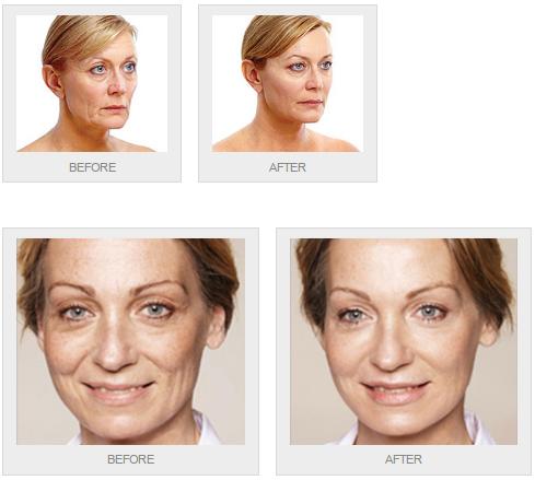 Pin by Dulwich Laser Beauty Clinic on Dermal Fillers Men