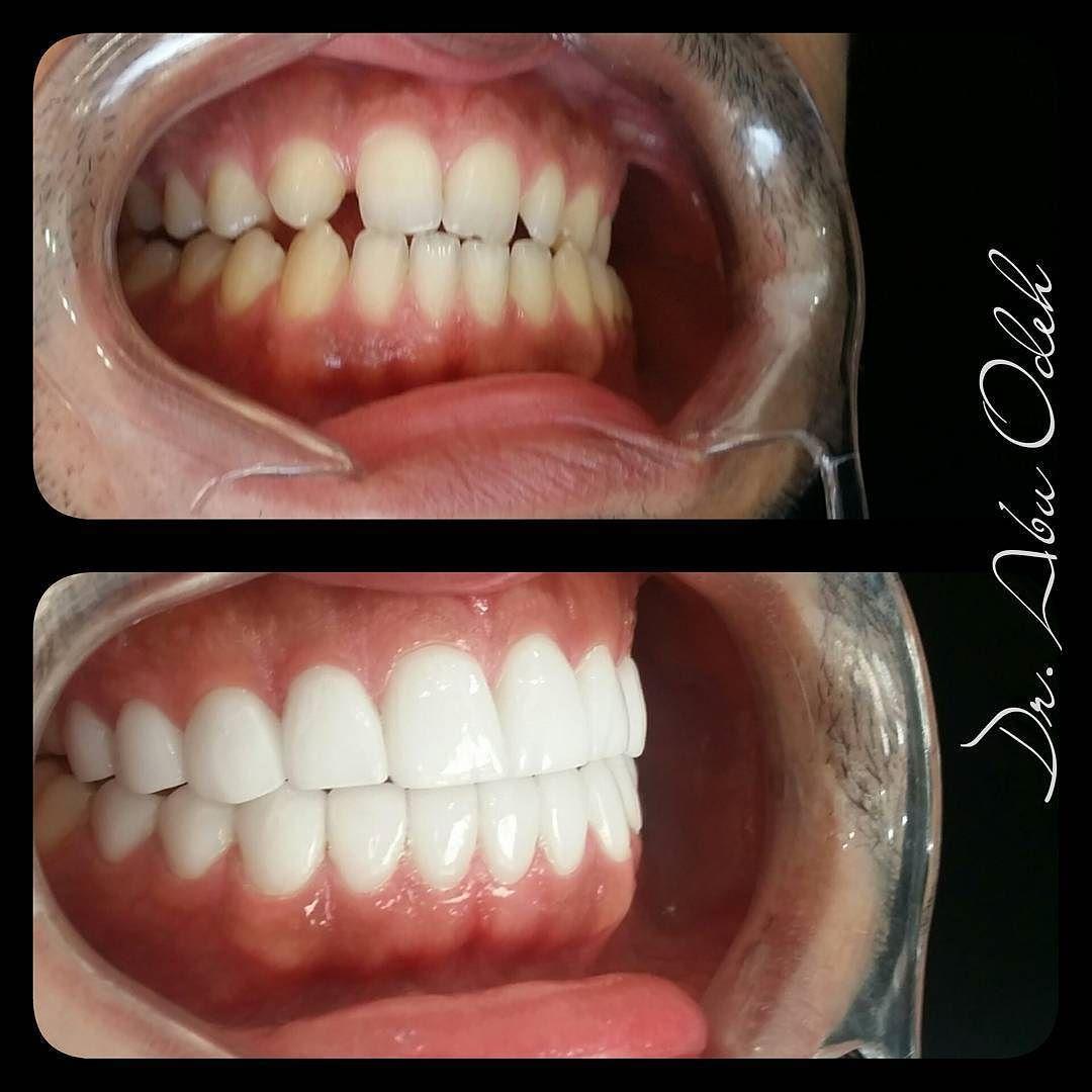 Pin by Laguna Vista Dental on Veneers Dental veneers