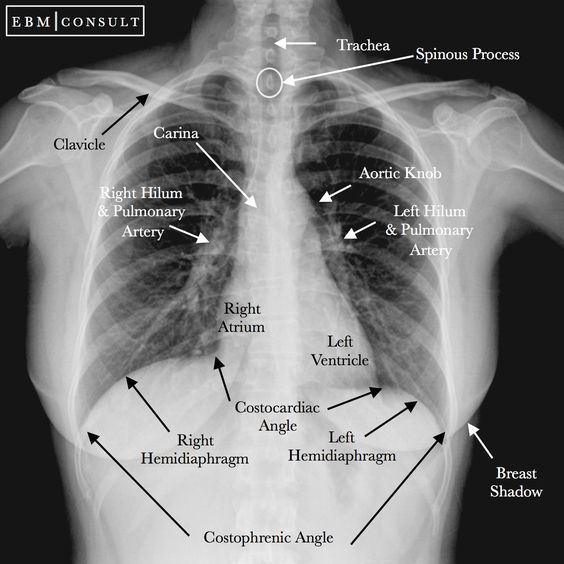 Chest Xray Radiograph Ap View Image Medical Knowledge Radiology Student Radiology