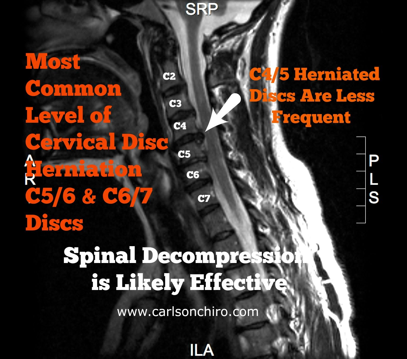 Pin By Carlson Chiropractic Austin On Herniated Disc