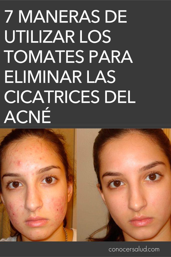 estrelen acne