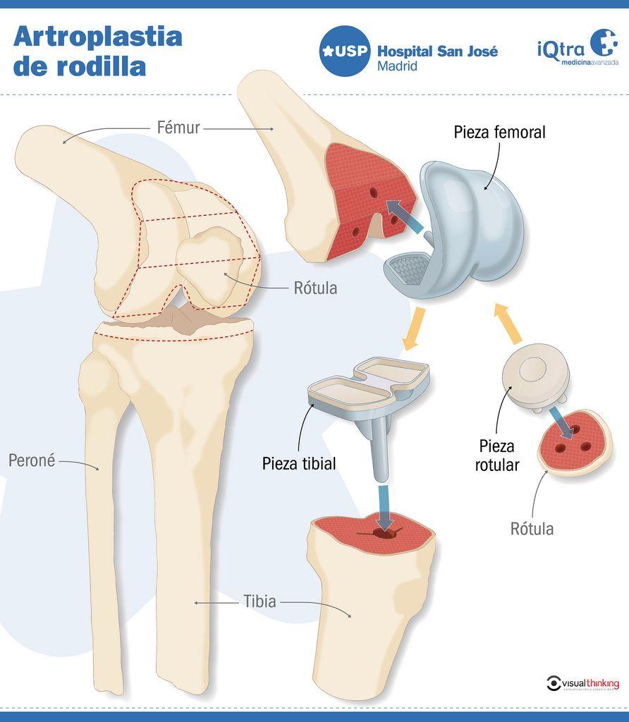 Artroplastia De Rodilla Infografia Infographic Salud Salud Enfermedad Salud Actividad Fisica Y Salud