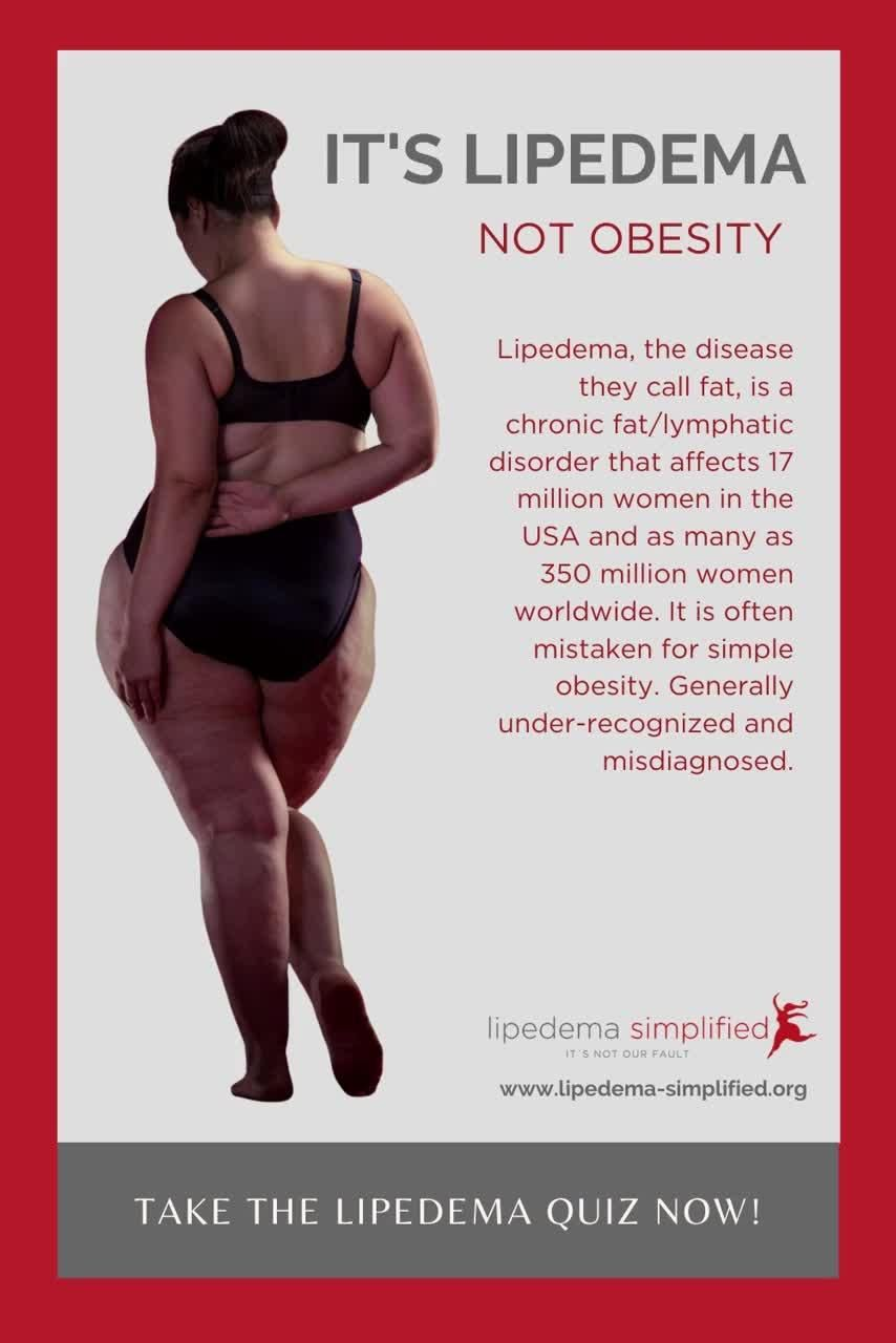 How To Know IF You Have Lipedema