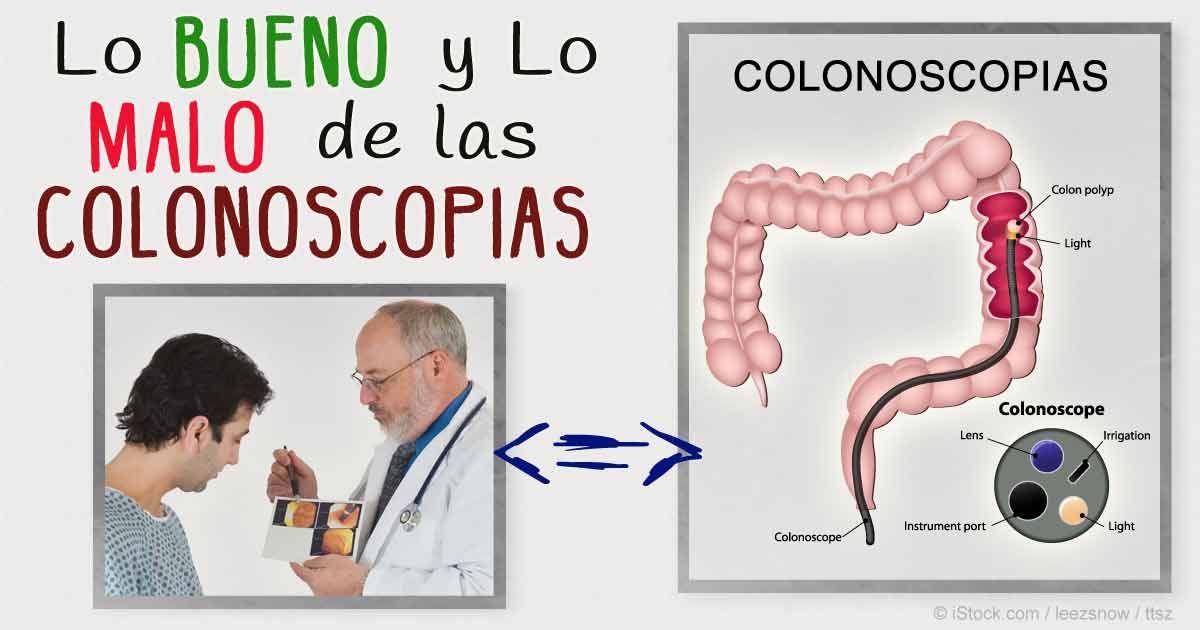 Ventajas y Desventajas de la Colonoscopia | Pinterest | De cerca ...