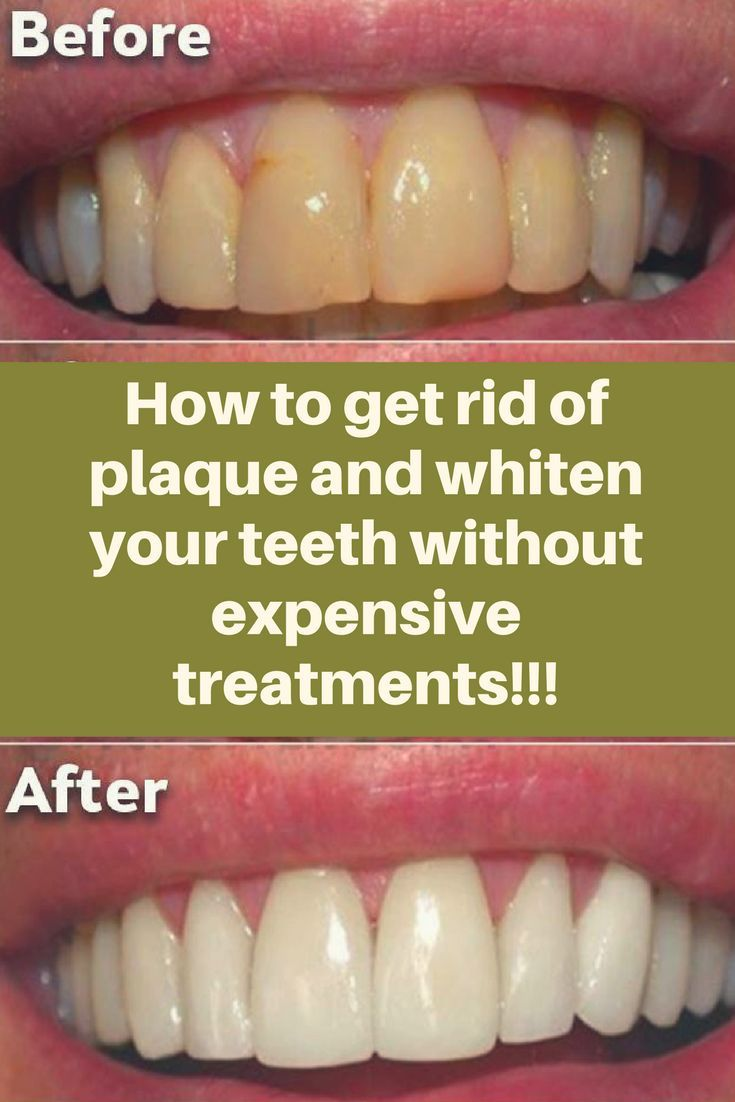 The sticky and colorless film of bacteria that constantly builds on the teeth is known as plaque. If you don't treat it, it can continue