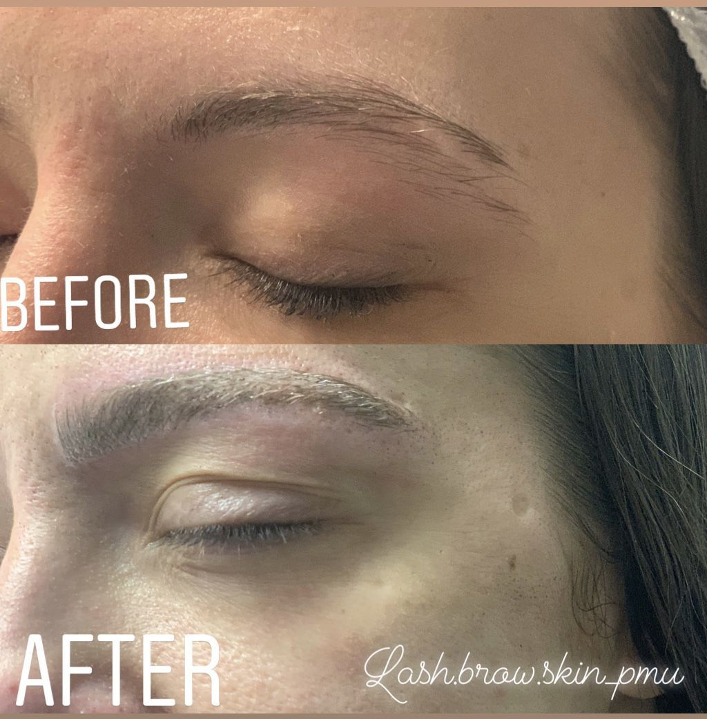 Microblading (scar coverup), coverup Microblading