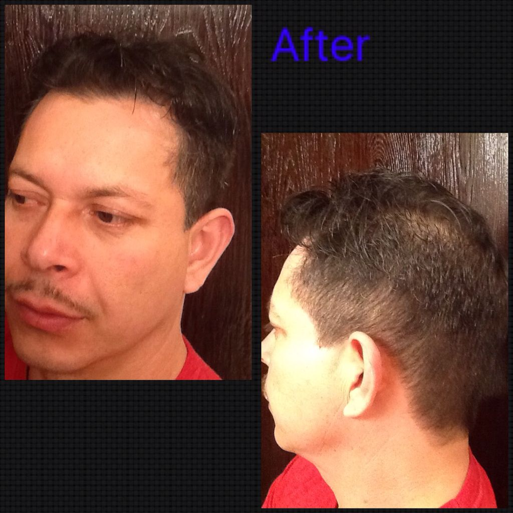 Haircut I Did On 4416 I Used A 1 Guard On The Bottom To A Medium