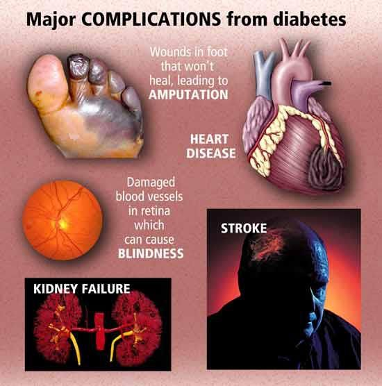 Diabetic Complications The brutal truth about not managing