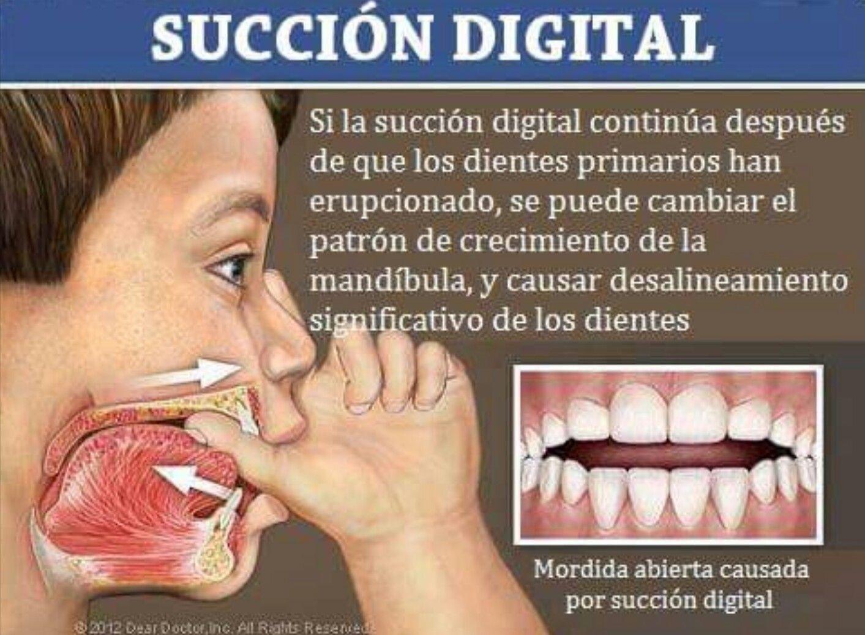 Pin de Fiorella Portella en tooth Ortodoncia, Dental