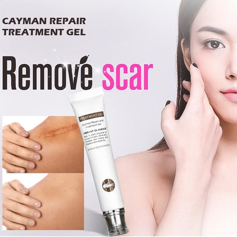 Vibrant Glamour Repair Scar Acne Remover Pro Skin Lightening Serum Acne Scar Removal Lightening Serum