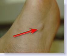 bottom foot of in Bumps