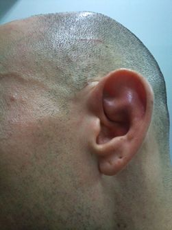 How To Treat An Outer Ear Infection Outer Ear Infection Ear Infection Outer Ear