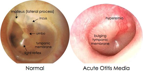 normal vs acute otitis media rosh review pediatrics eore. Black Bedroom Furniture Sets. Home Design Ideas