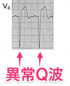 異常q波の定義と機序 梗塞部位との関係 つねぴーblog 内科専攻医 関係 学習 部位