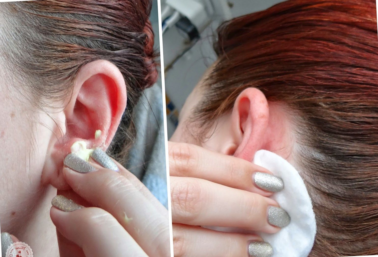 Haarfarbe entfernen haut - http://schoenheit-ideen.info/haarfarbe-entfernen-haut-356/. #frisuren #frisurentrends #Frisurentrends2017 #NeueLooks