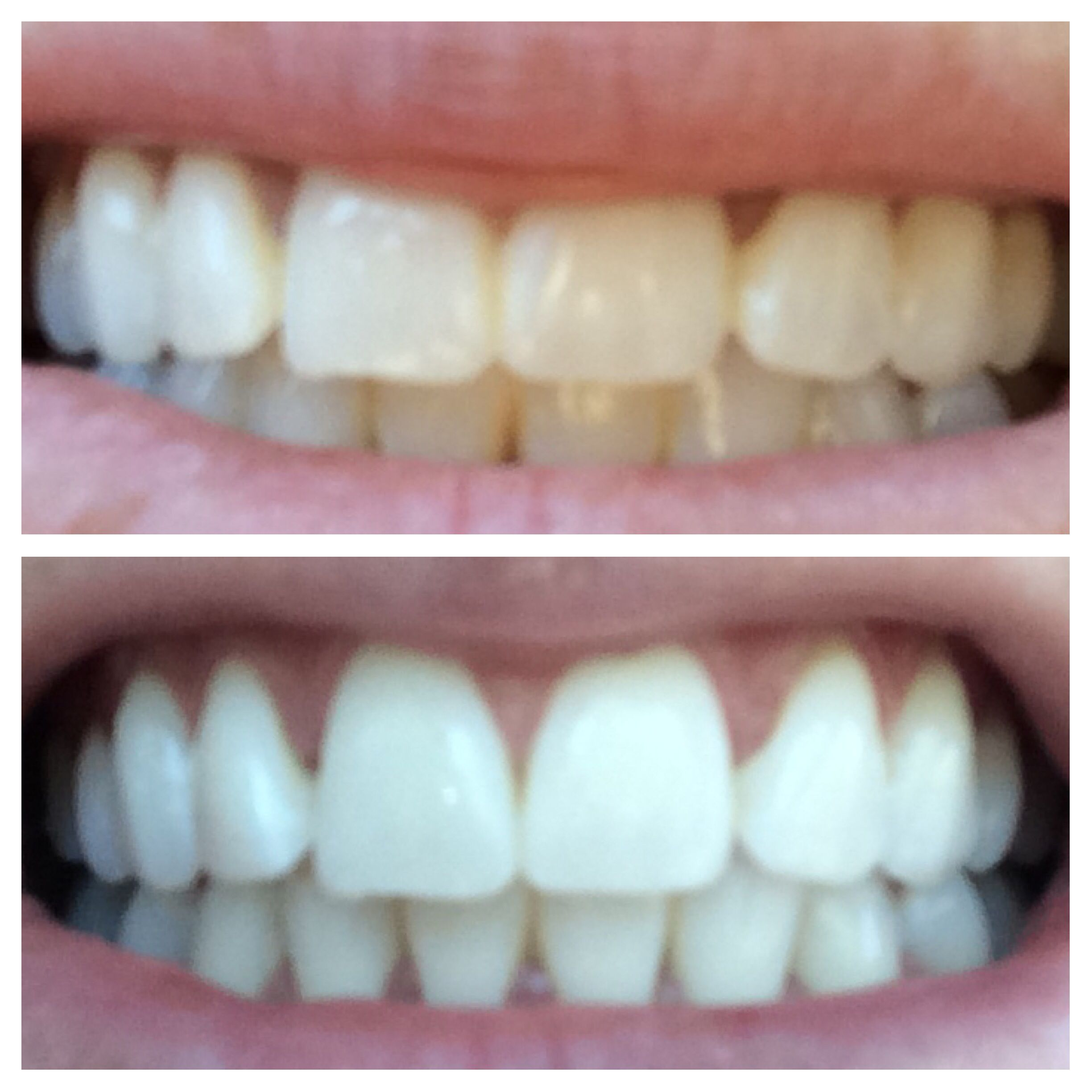 Diy Teeth Whitening Activated Charcoal Treatment Break Open A