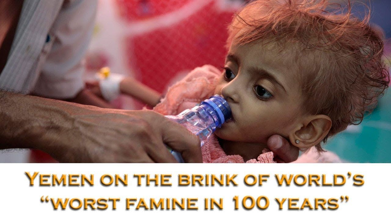 Yemen On The Brink Of Worst Famine In 100 Years Youtube Yemen The 100 Years