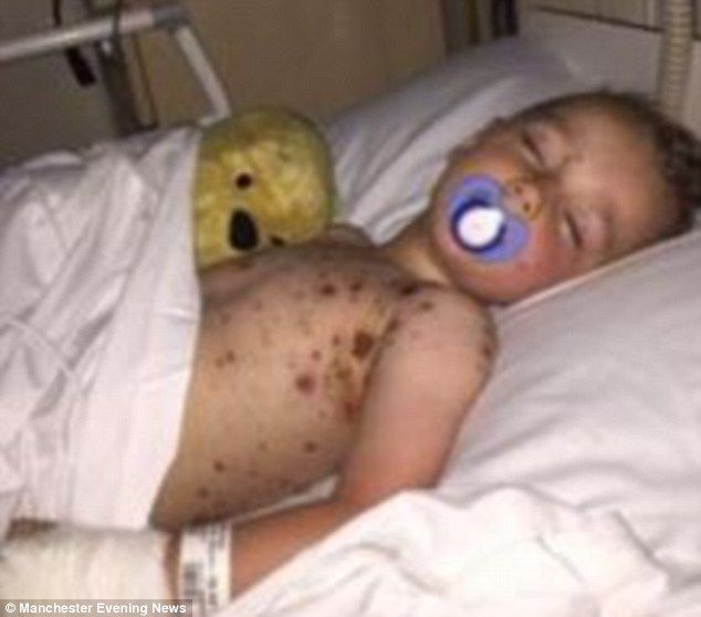 Hannah Lyons shared these shocking pictures of Lewis in Alder Hey Children's Hospital after his chickenpox developed into blood poisoning after a severe reaction to children's ibuprofen