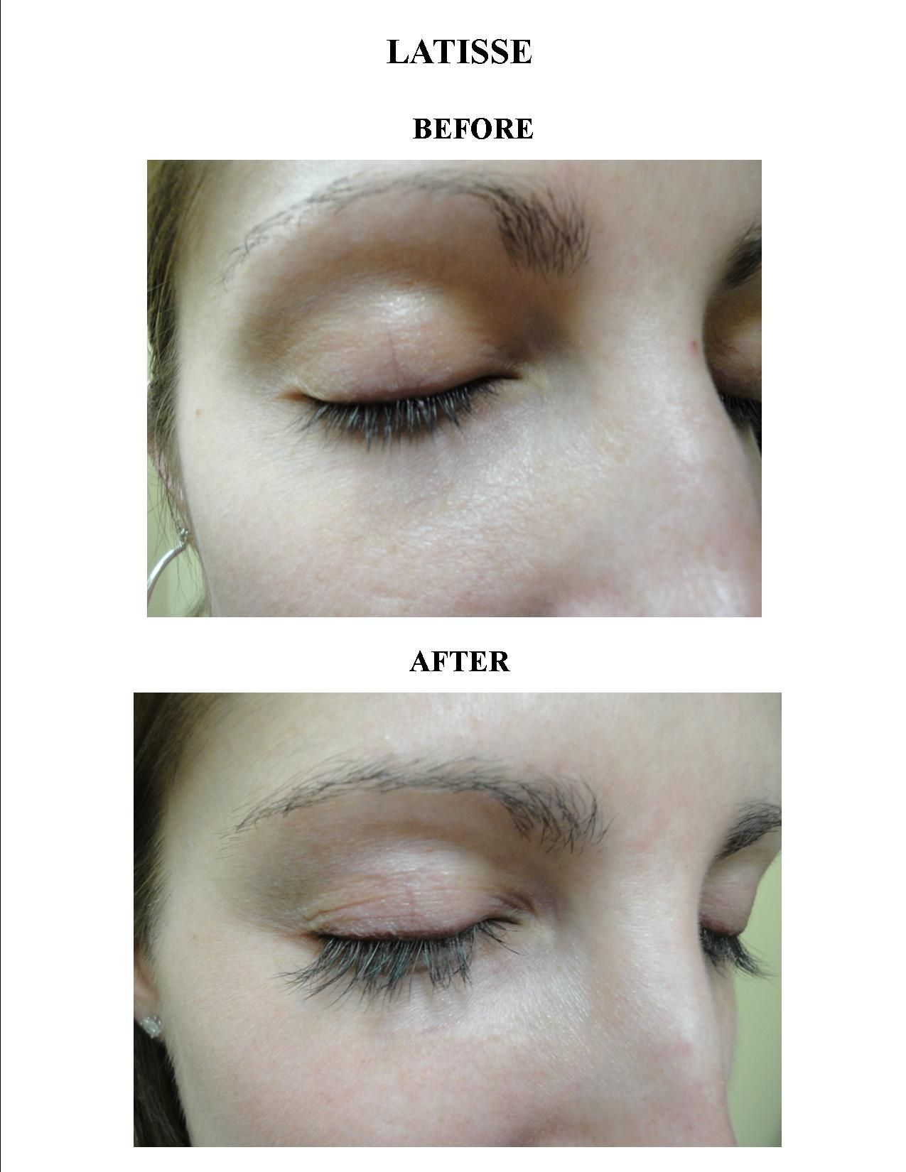 Using Latisse To Make Your Eyelashes Longer And Thicker Is A Great