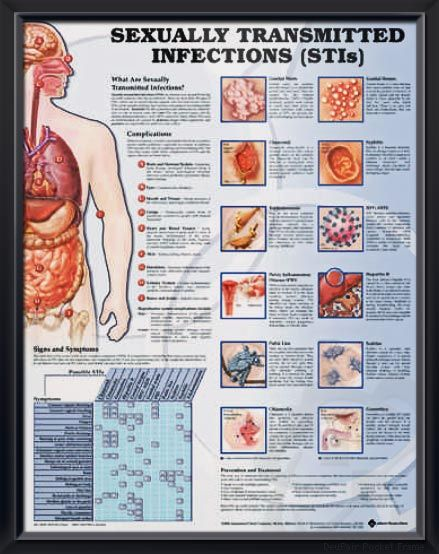 List 4 sexually transmitted infections images