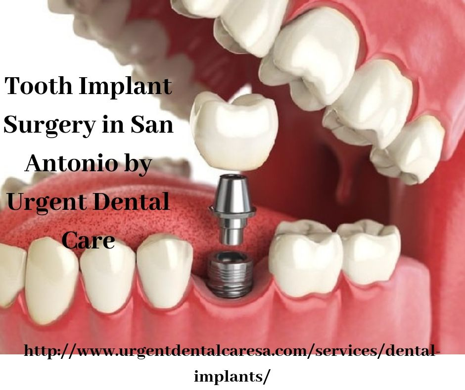 Do you want to hire a clinic for Tooth Implant Surgery? If