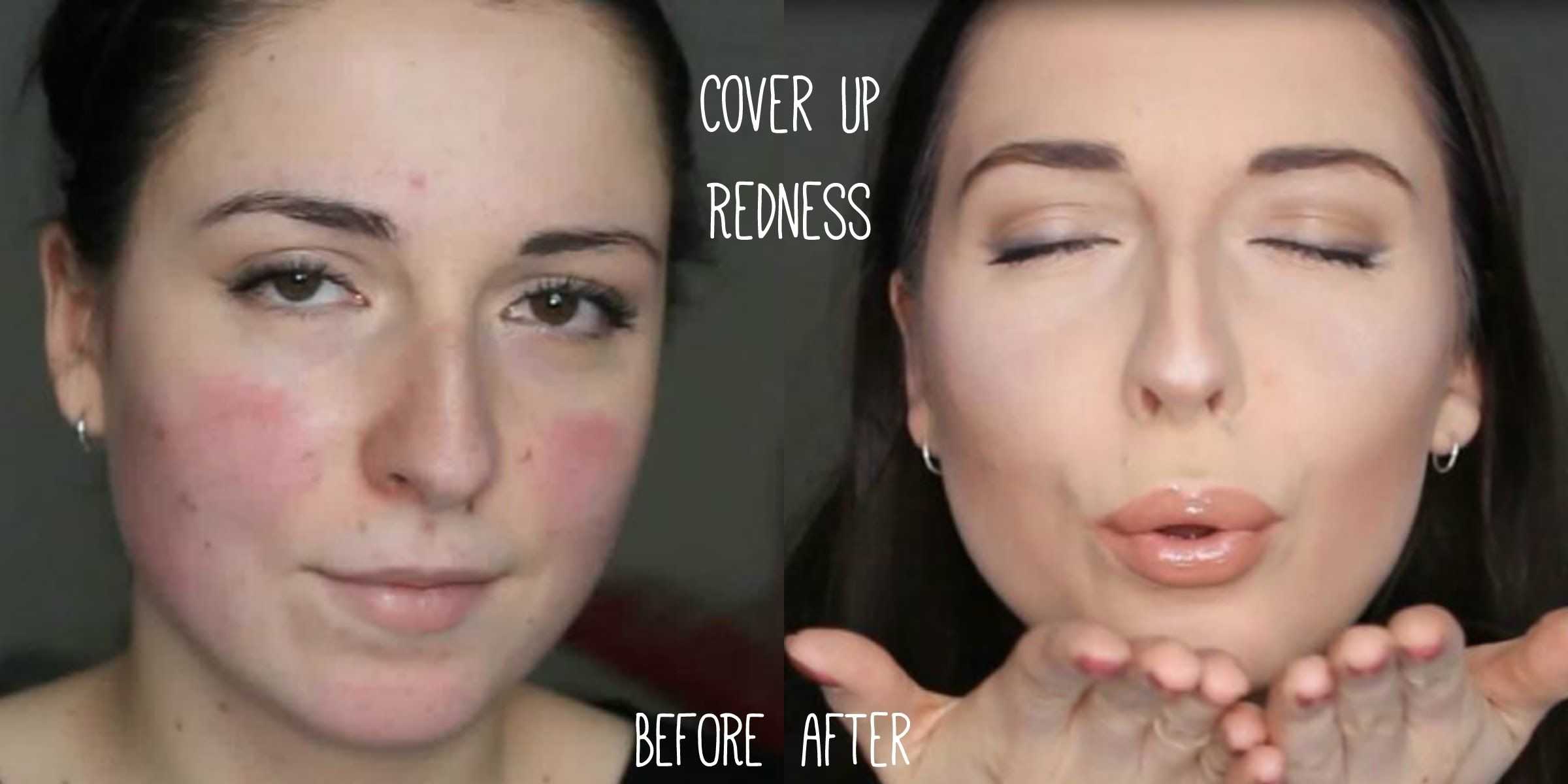 MakeUp Tutorial for Rosacea Party Camouflage