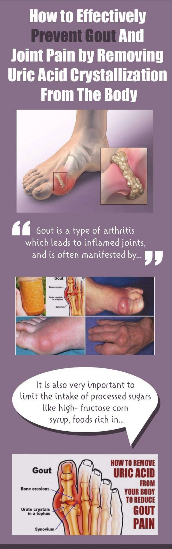 Goutis a type of arthritis which leads to inflamed joints