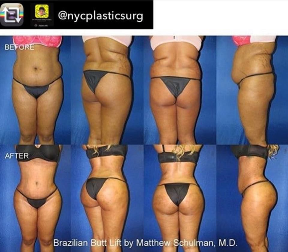 Repost from @nycplasticsurg -- How does this #BrazilianButtLift work