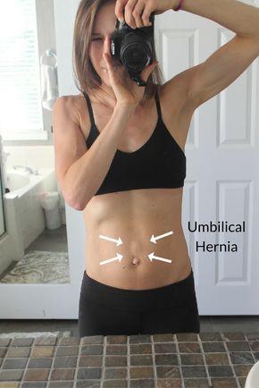 428057e41c4 Healing diastasis recti and dealing with umbilical hernias