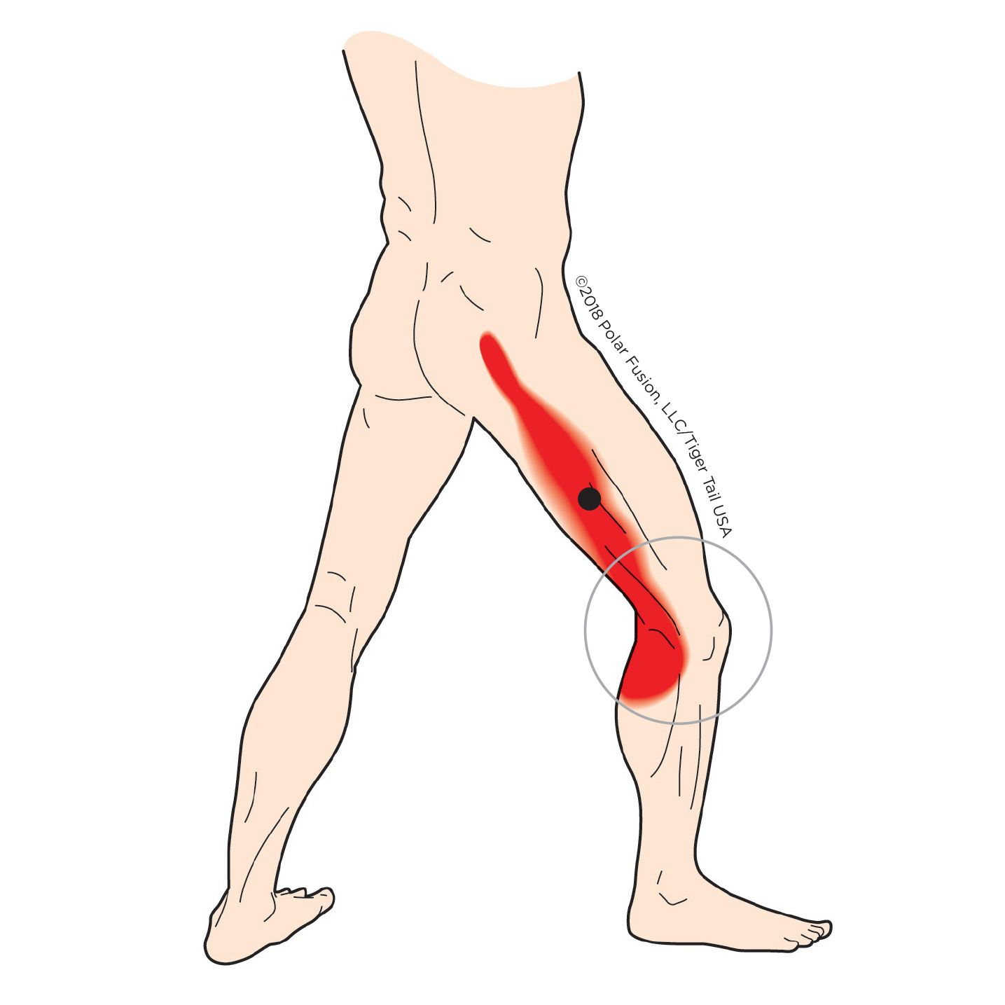 35+ What does a hamstring knot feel like trends