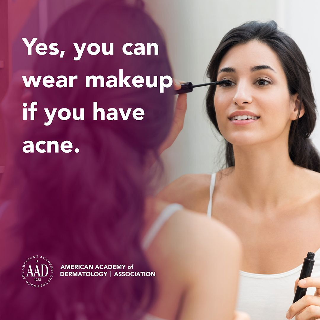 You can wear makeup if you have acne, but following these