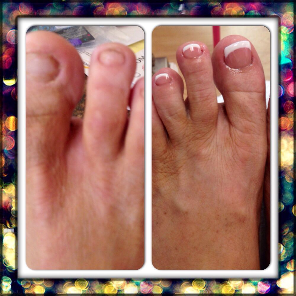 Before and after! Acrylic and gel polish overlay on her natural ...